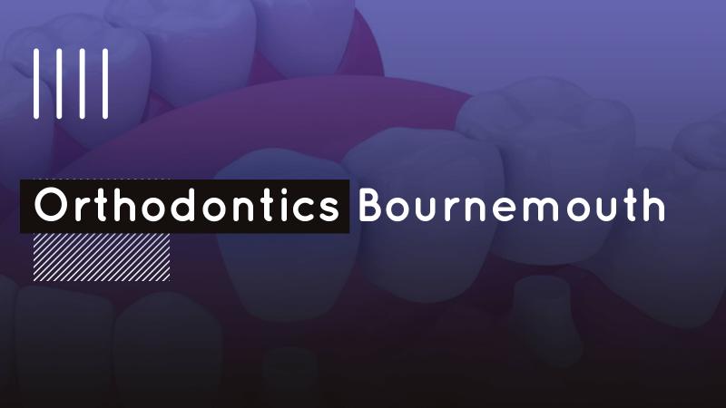 Orthodontics Bournemouth image