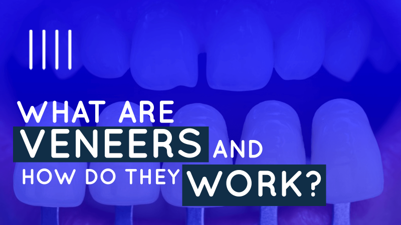 What are veneers and how do they work? image