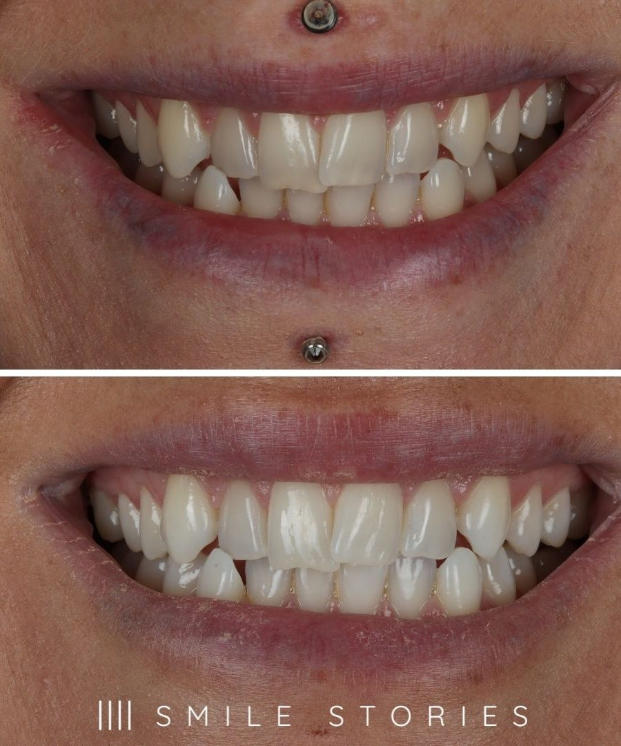 Boutique Teeth Whitening