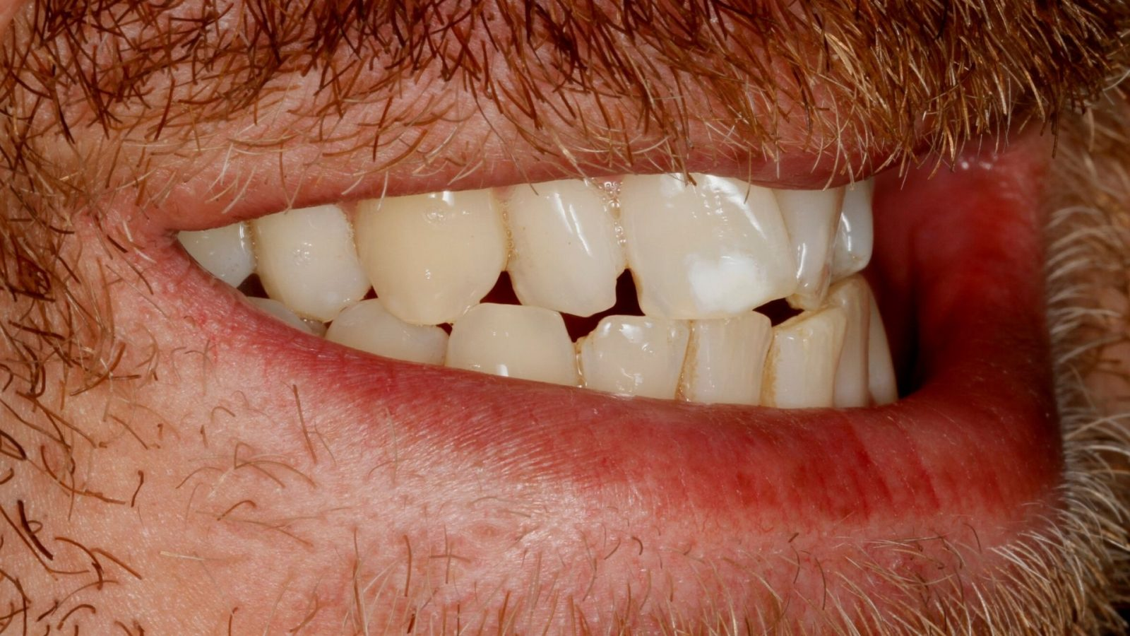 Photo of Craig's teeth before from the side