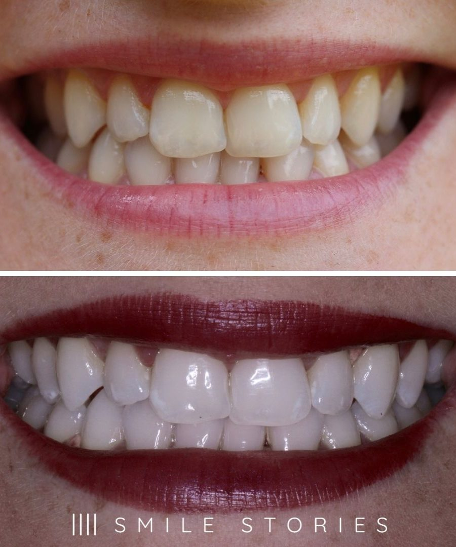 Cheap tooth whitening bournemouth