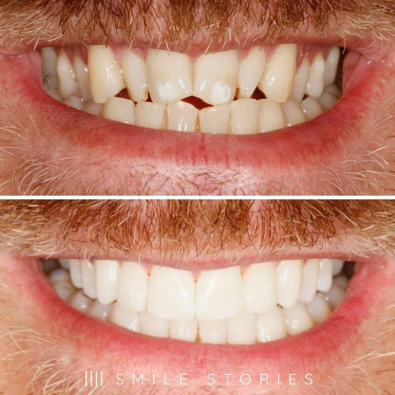 another invisalign smile from our orthodontists