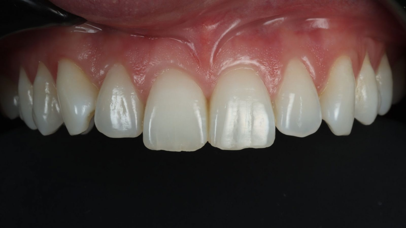 photo of upper uneven teeth before bonding