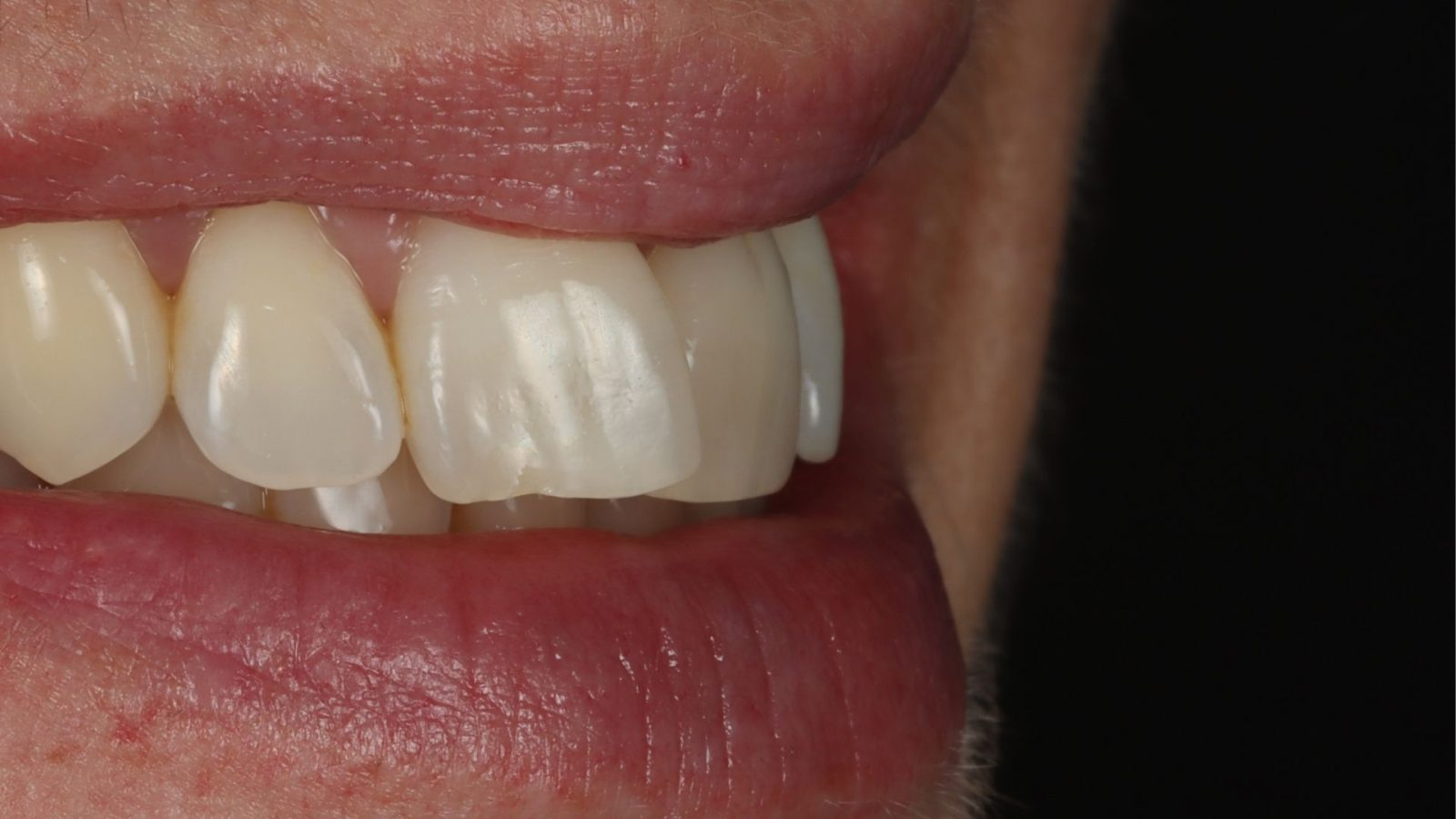 Close up of teeth before Invisalign from the side