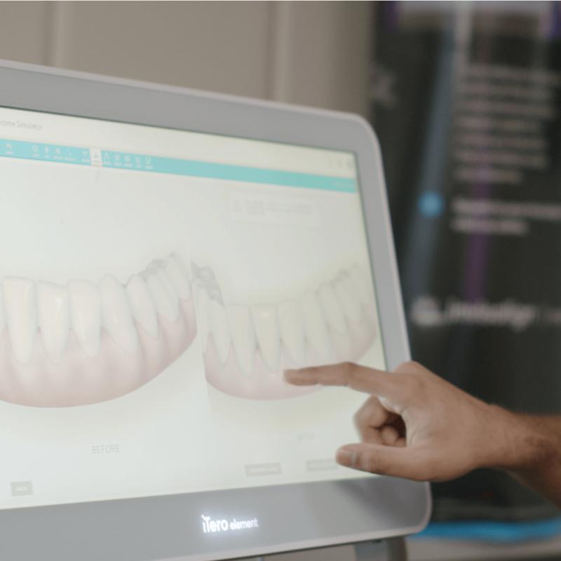 Digital Dentistry 3D Planning Teeth Straightening Guaranteed Results