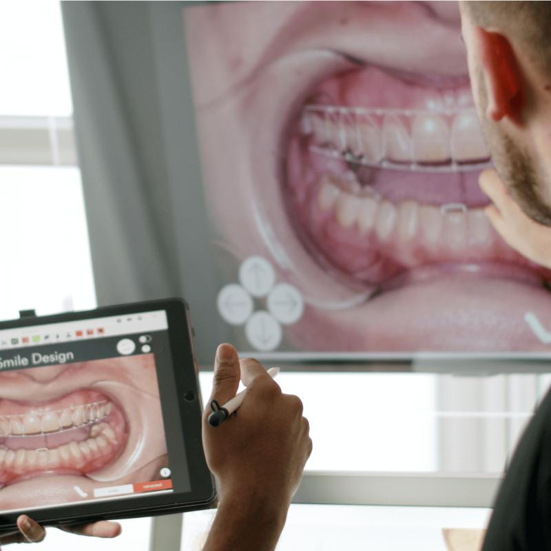 Digital Smile Design Planning No Surprises Teeth Straightening