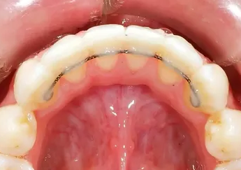 photo of a fixed retainer