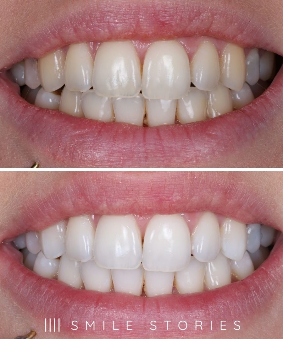 Dorset professional tooth whitening