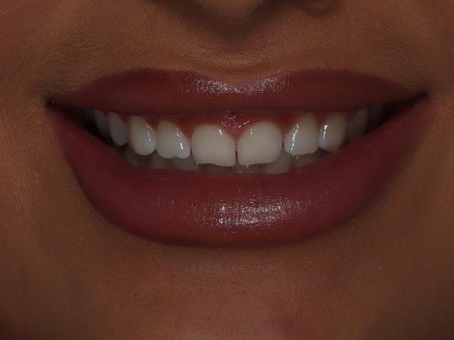 Photo of Helena's teeth before bonding