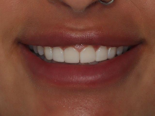 Photo of Helena's teeth after bonding