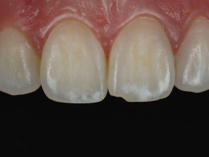 Photo showing teeth before white spot removal