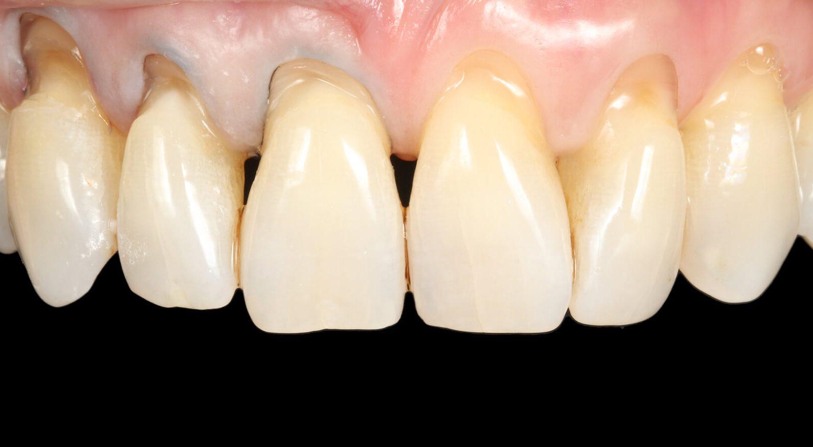 Gap Closure Bonding Composite Teeth Bonding Dental Bonding Bournemouth Poole