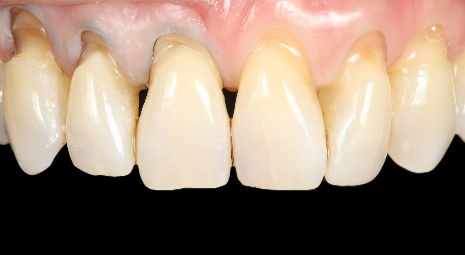 Gap Closure Bonding Composite Teeth Bonding Dental Bonding Bournemouth Poole