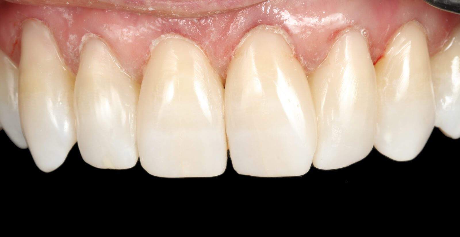 Gap Closure Results Composite Teeth Bonding Dental Bonding Bournemouth Poole