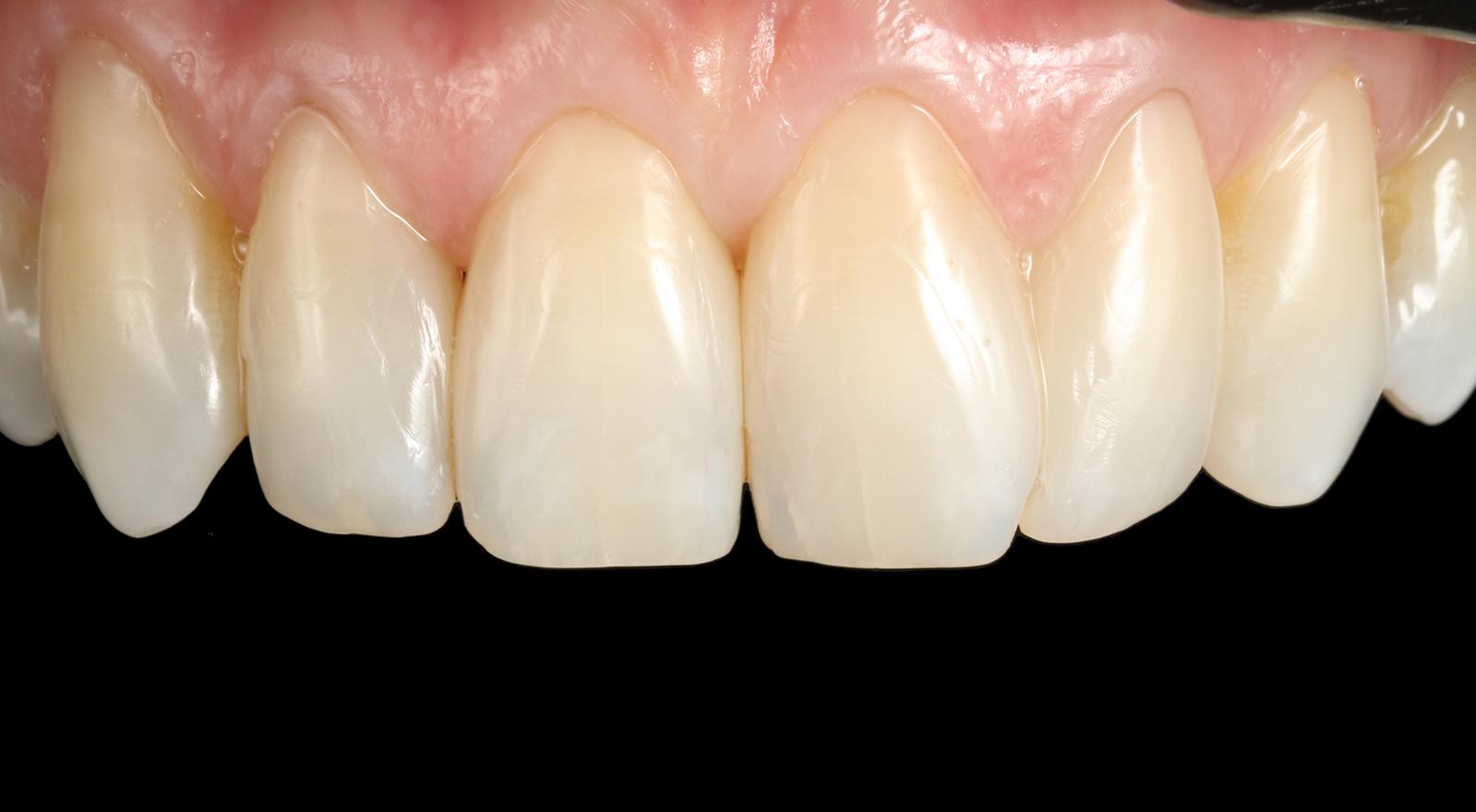 Gap Closure Results Composite Teeth Bonding Bondings Bonds Dental Bonding Bournemouth Poole