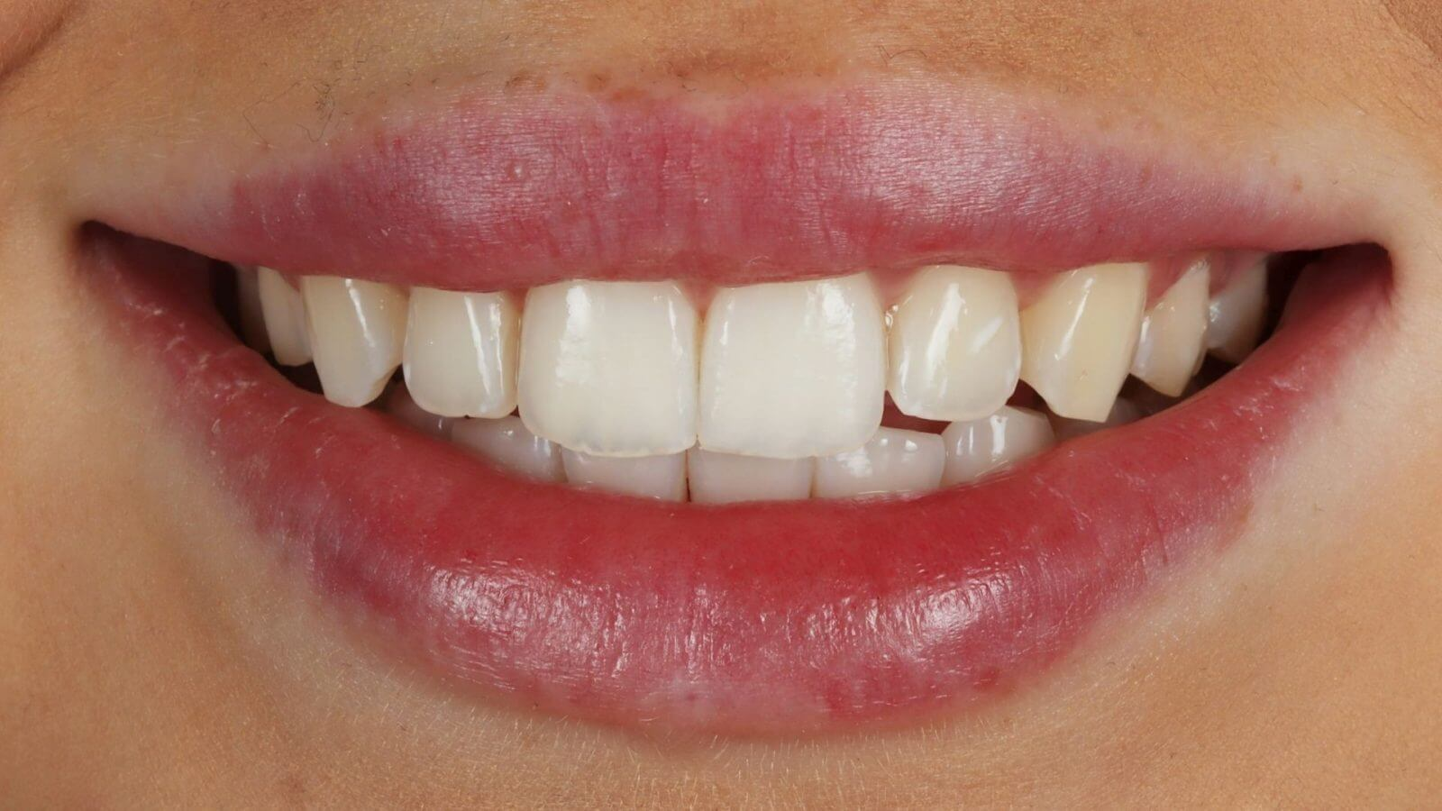 Invisalign Bournemouth [Anabel After]
