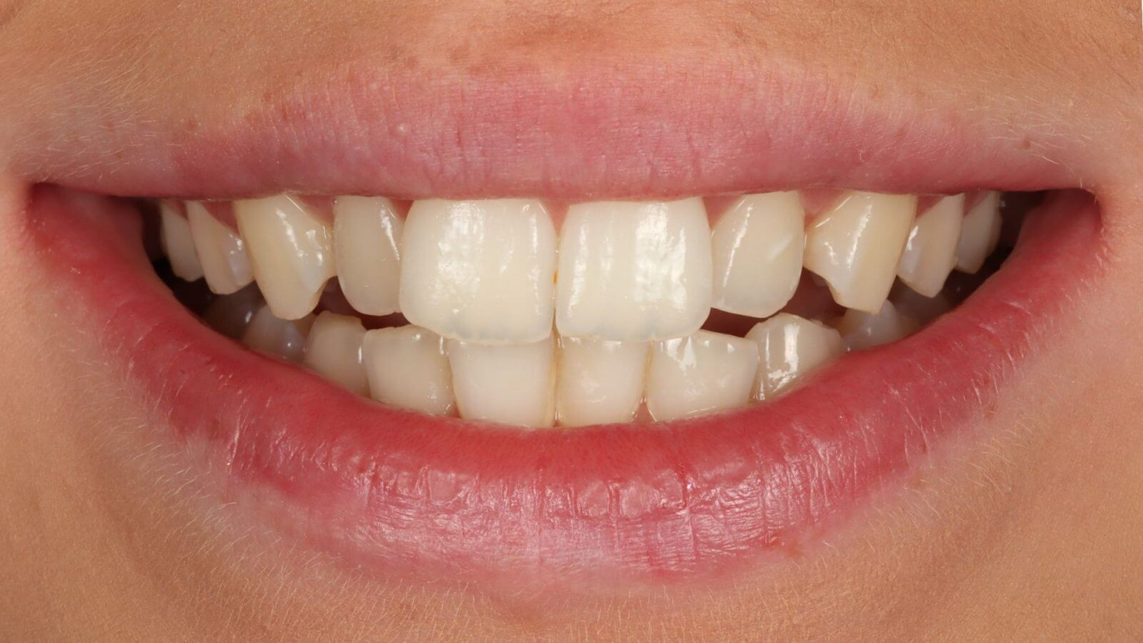 Invisalign Bournemouth [Anabel Before]