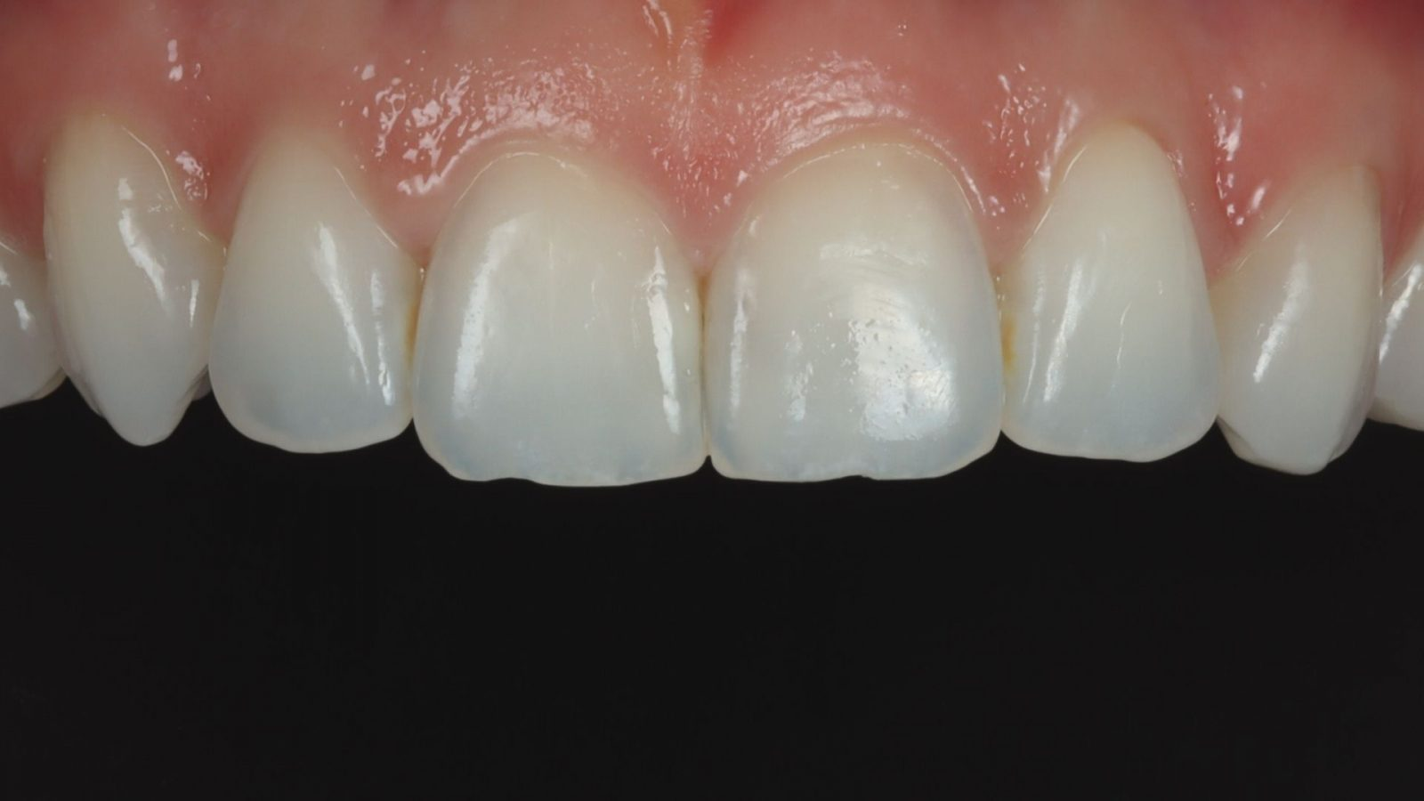 photo of teeth after invisalign