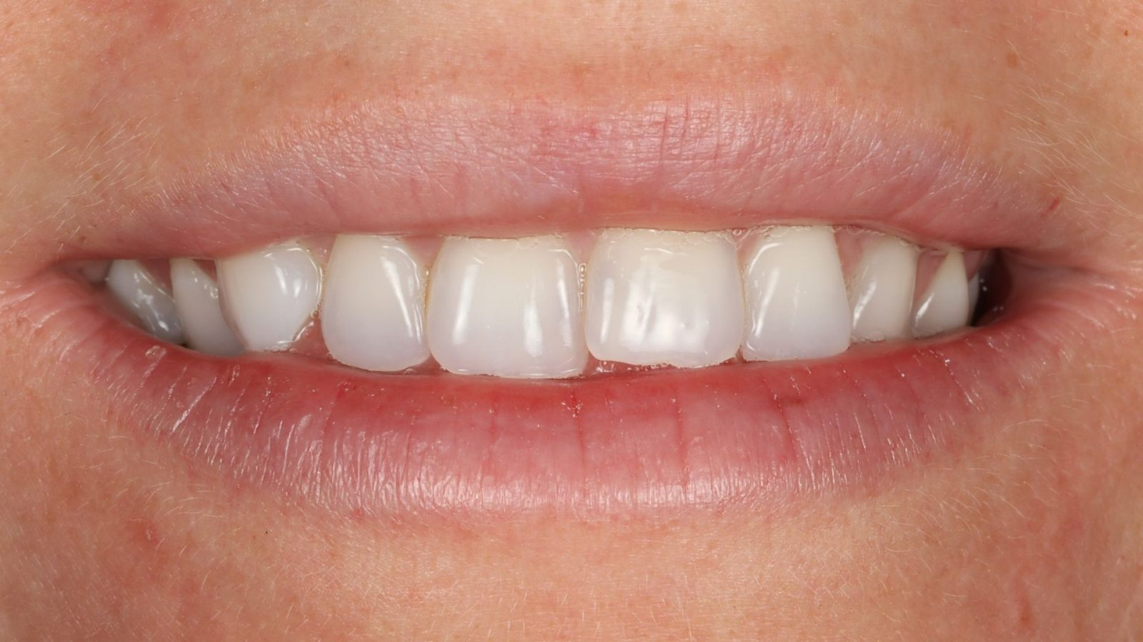 Photo of teeth before Invisalign