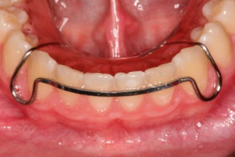 Invisalign retainer - Hawley