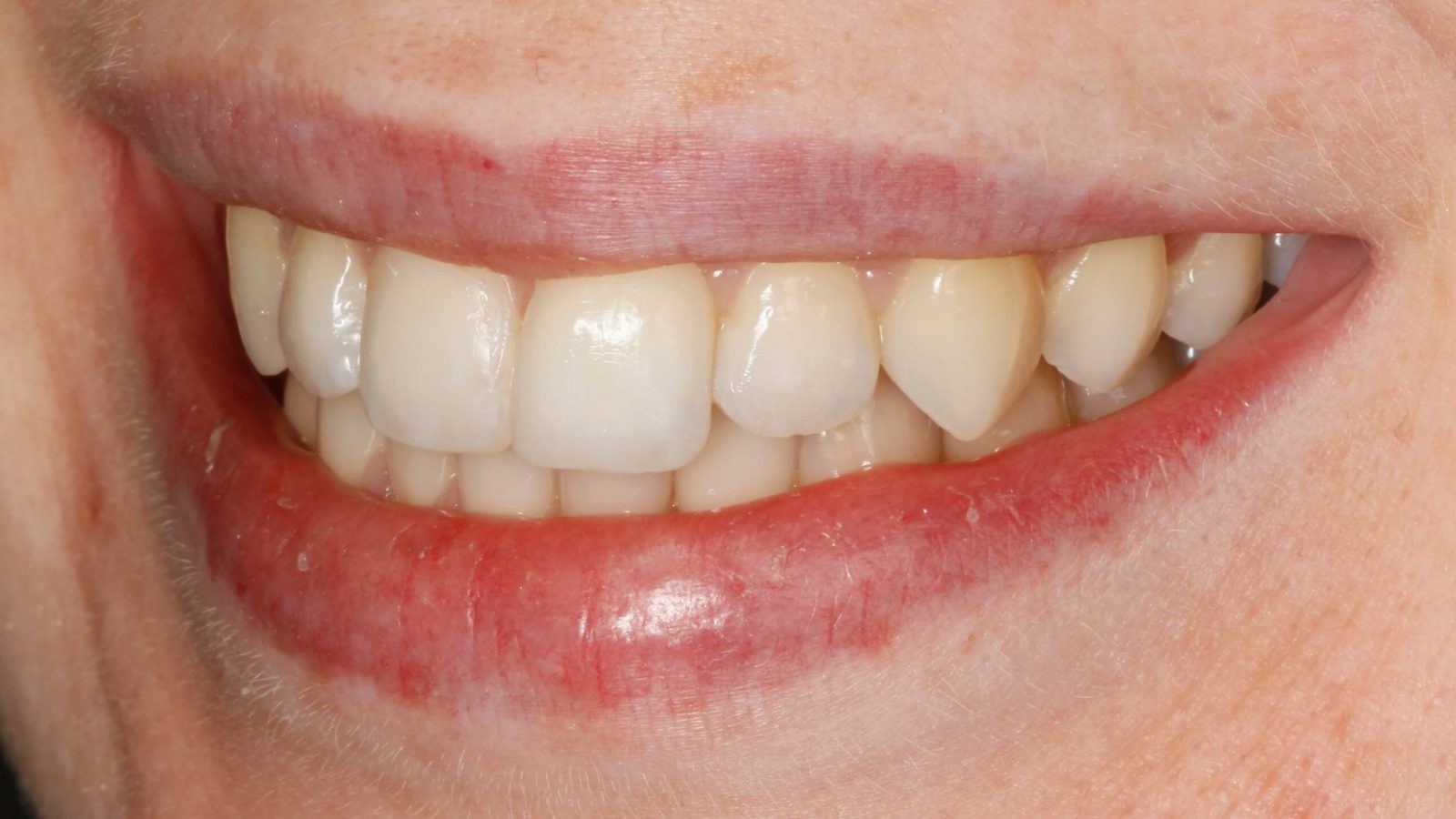 Invisalign-right-after