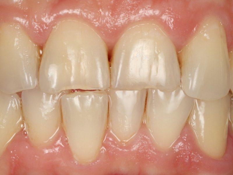 Photo of worn teeth