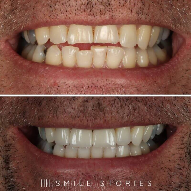 Kevins teeth straightening
