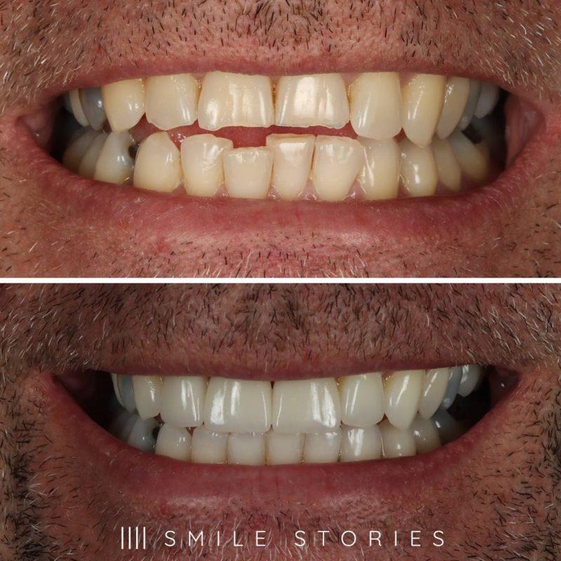 Kevin Smile Transformation