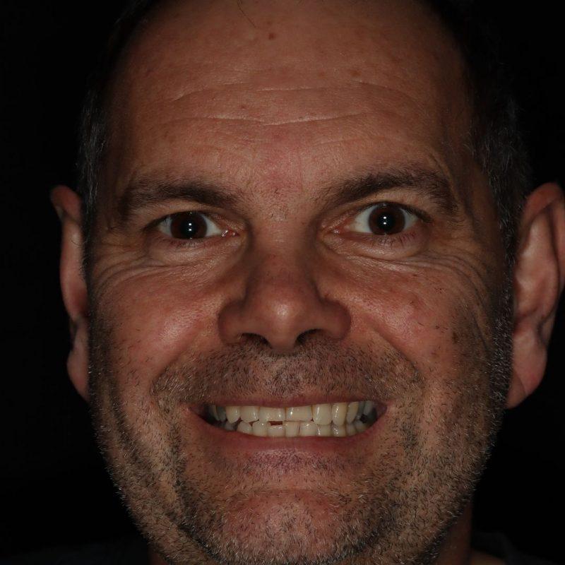 facial photo of Kev