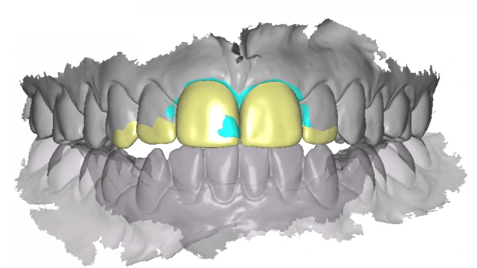 Digital plan of Lindsey teeth