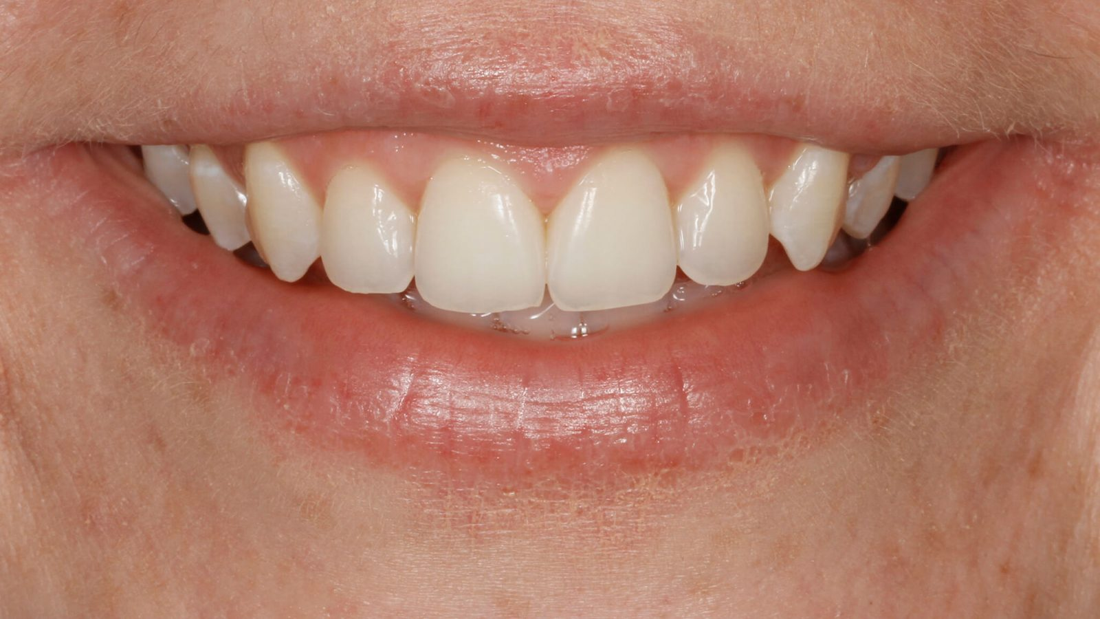 Photo of Cait after Invisalign