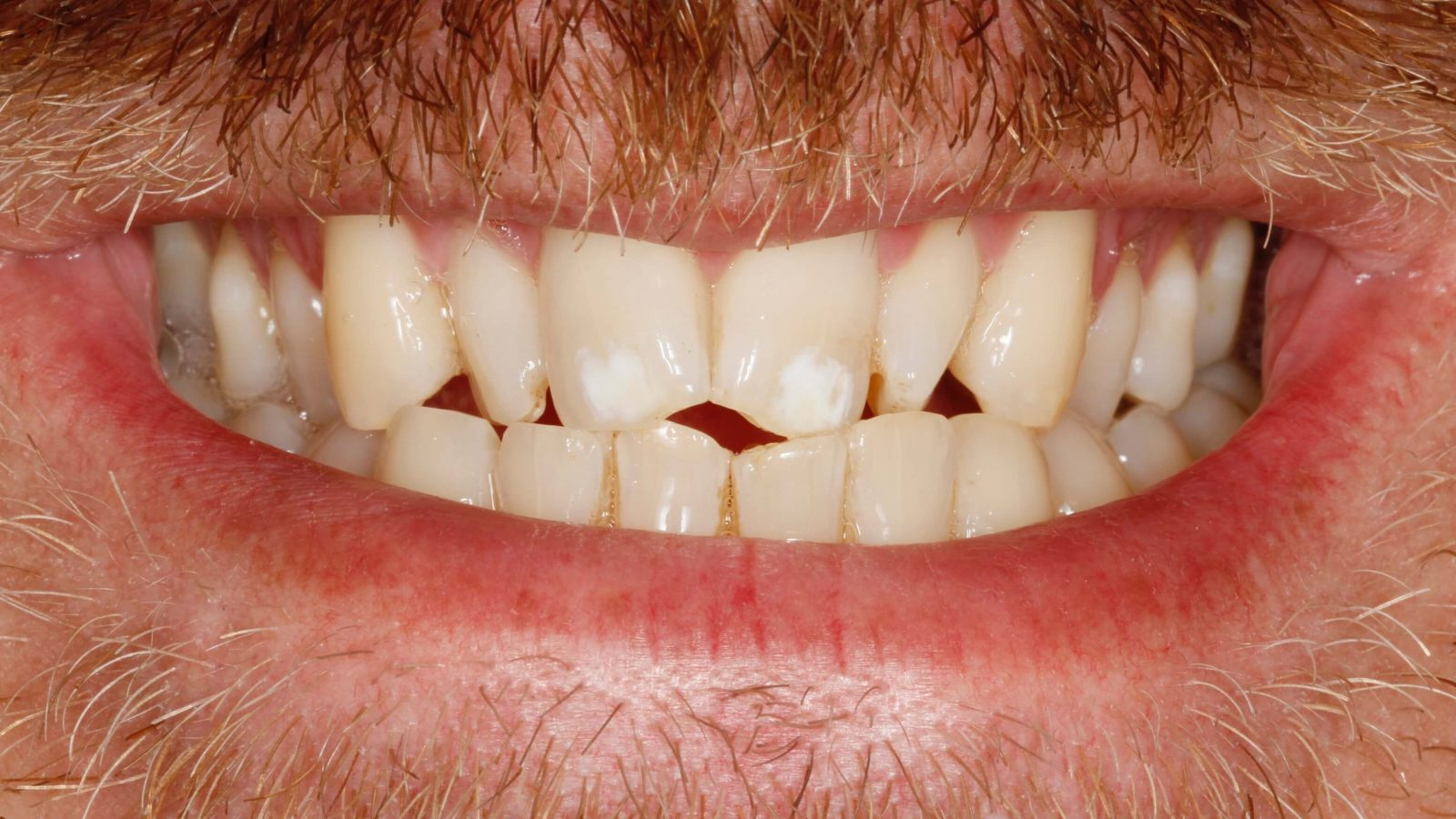 Jagged chipped teeth white patches