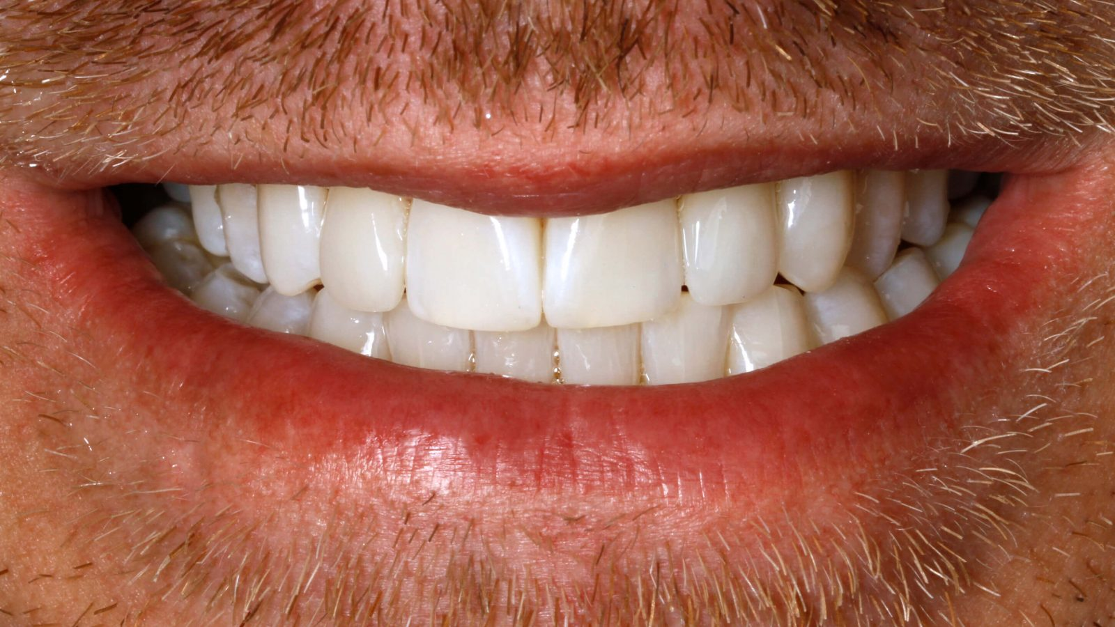 Craig after Invisalign and Composite Bonding