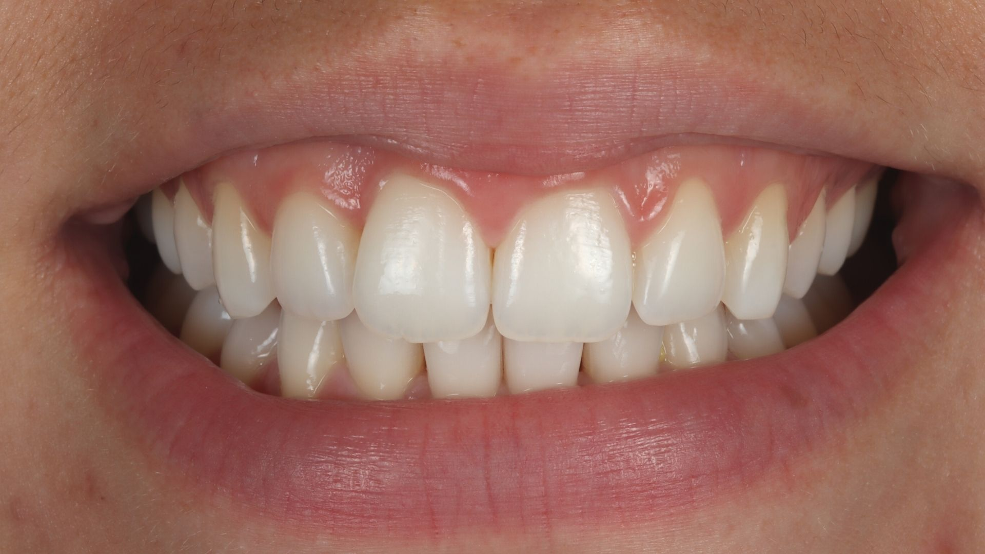 Photo of Maria's teeth after finishing Invisalign and Whitening
