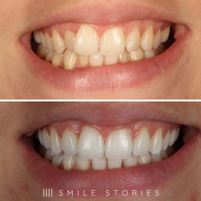 Teeth Straightening Bournemouth