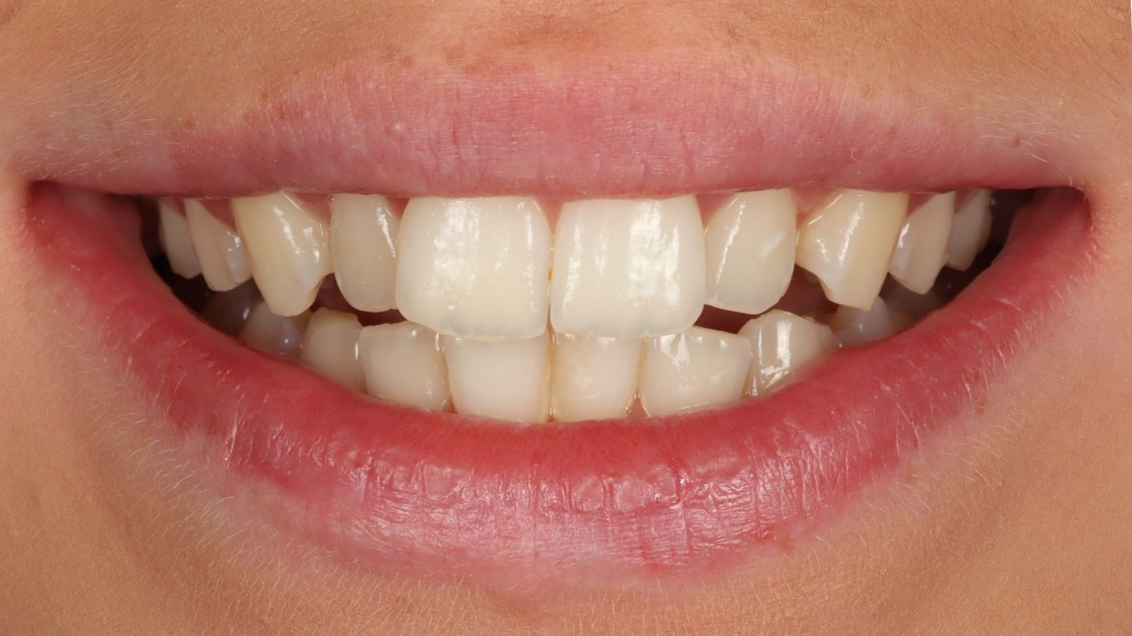 Photo of Anabels teeth before