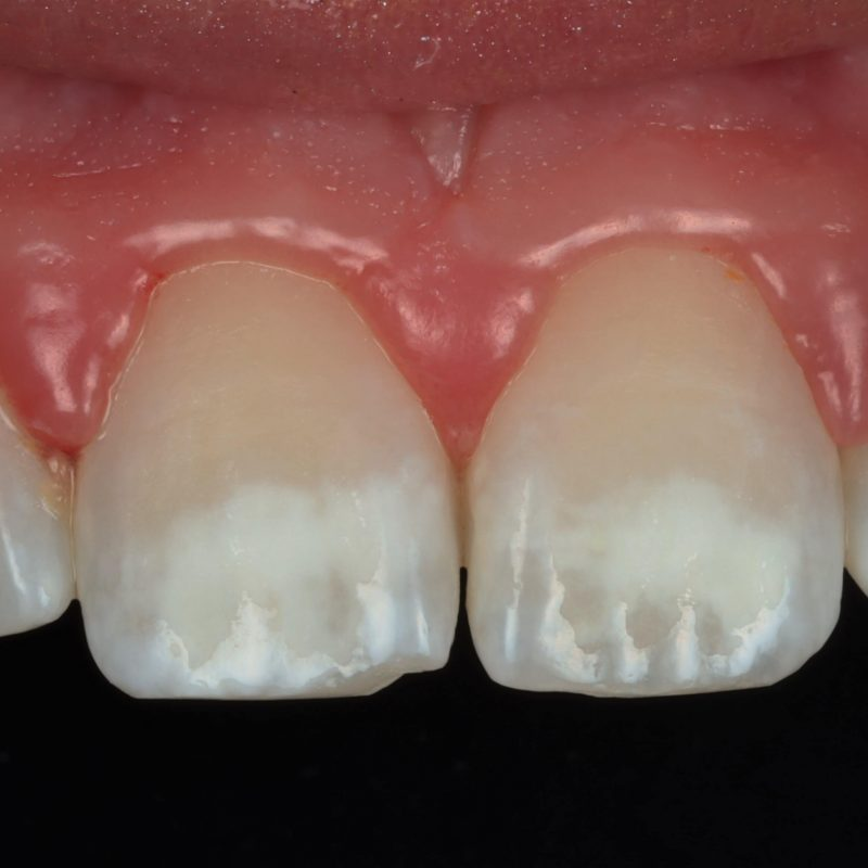 Photo showiing teeth before white spot removal