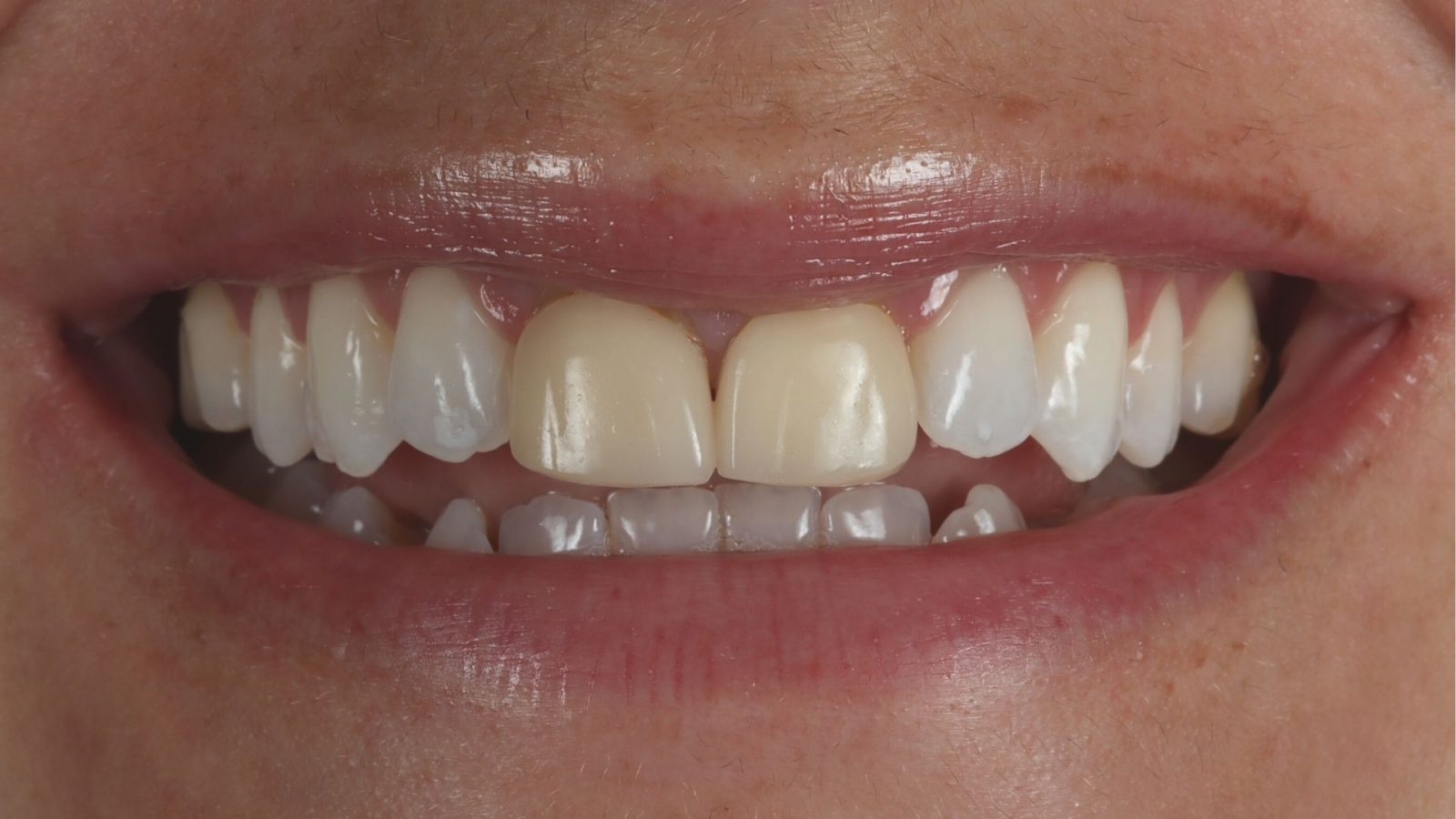 photo of Linsey's teeth before