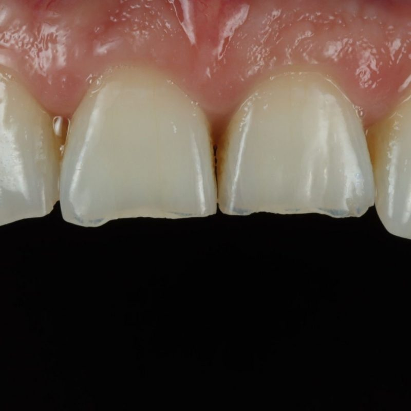 Close up photo of teeth after