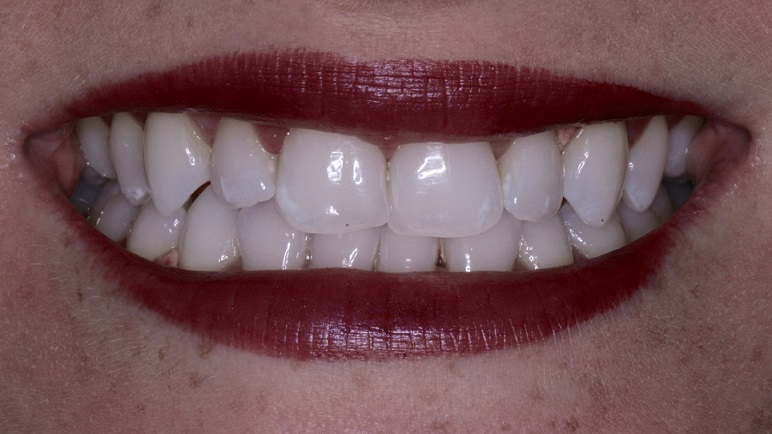 photo showing white teeth