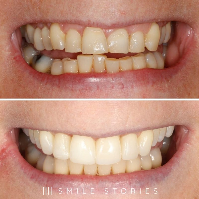 composite-bonding-bournemouth-before-after