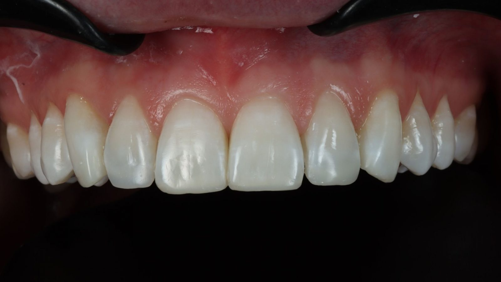 photo of upper uneven teeth after bonding