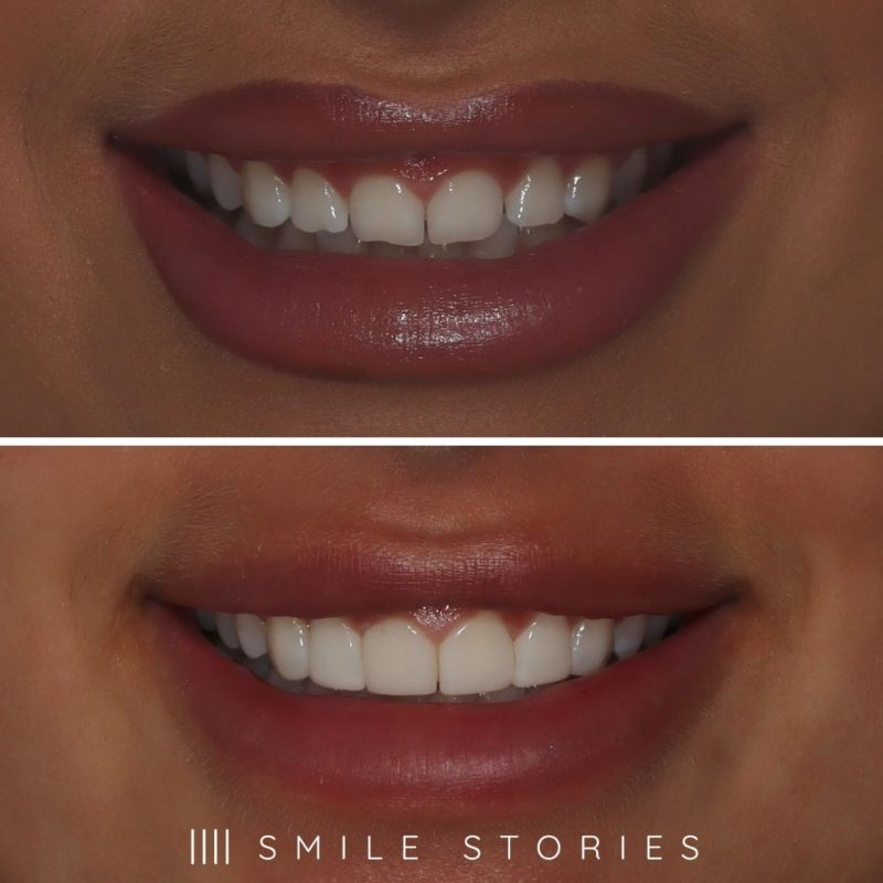 Photo of composite veneers