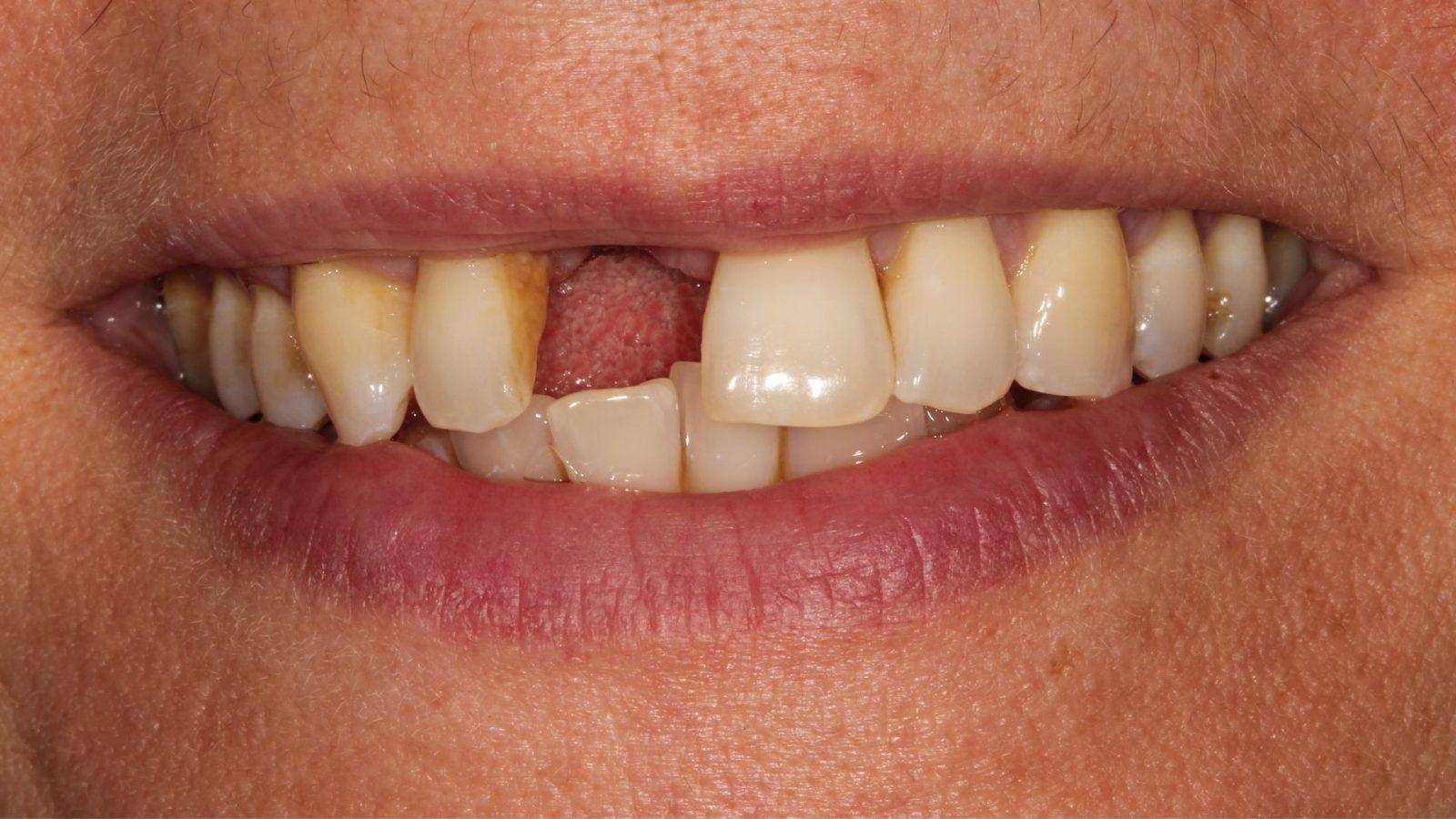 dental-implants-bournemouth-1600x900