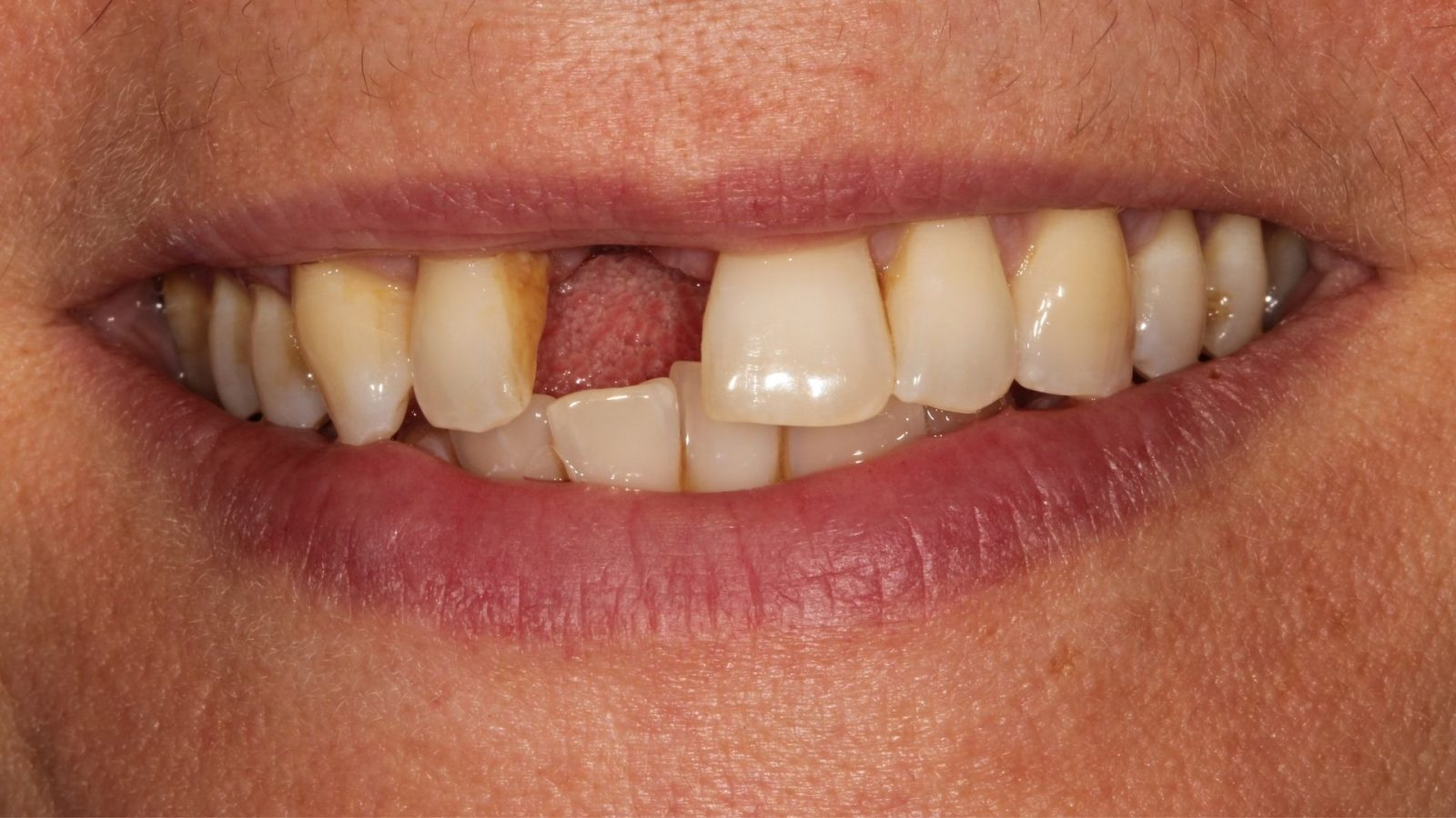 photo of missing front tooth before implant placed