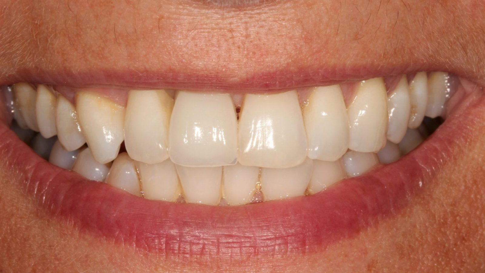 photo of missing front tooth after implant placed