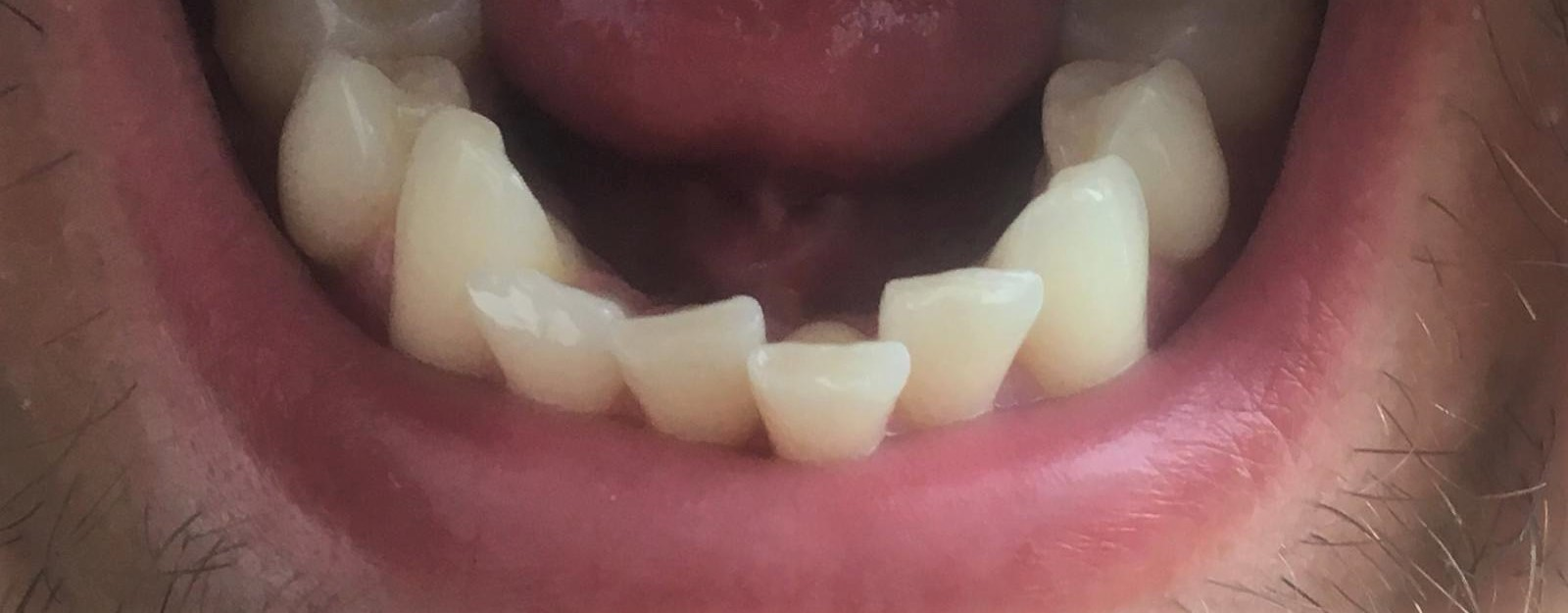 photo shows crowded teeth unsuitable for veneers
