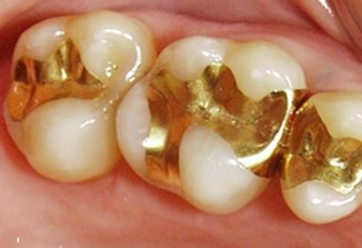 gold dental filling
