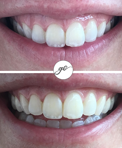 photo showing botox for a gummy smile