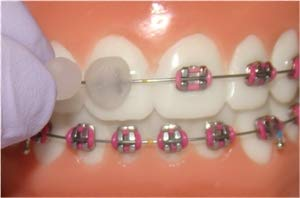 photo showing how to use orthodontic wax